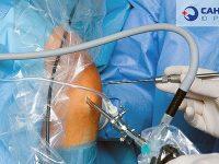 Артроскопия: операции на локтевом, плечевом и коленном суставах