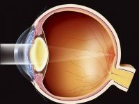 Лечение катаракты: метод ультразвуковой факоэмульсификации